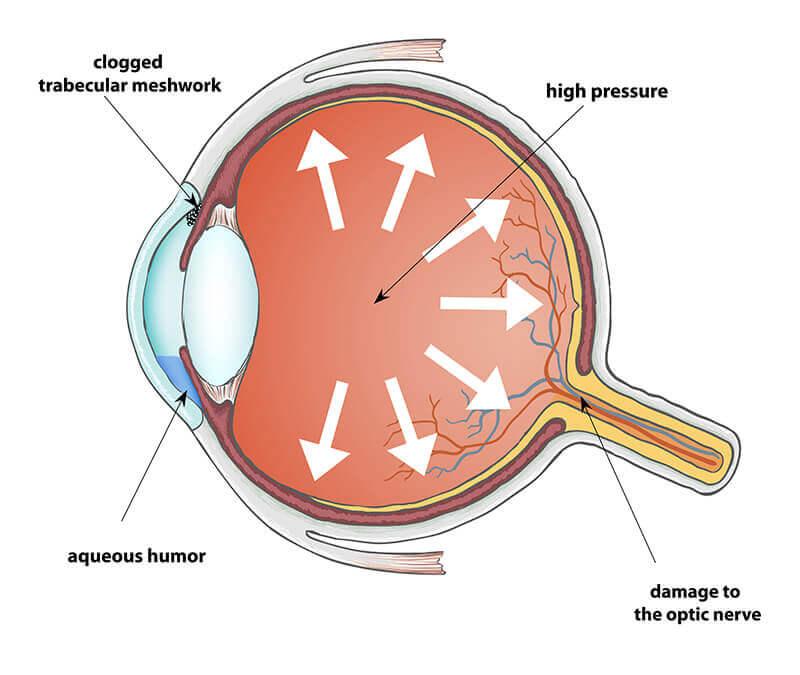 drawing of eye