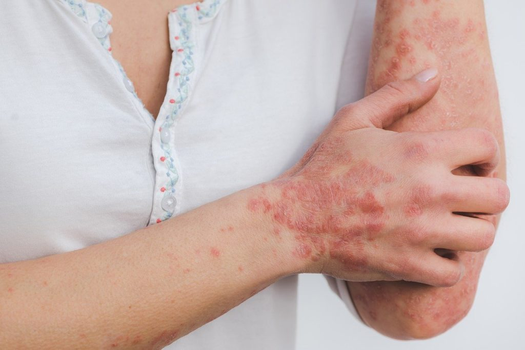 psoriasis on hand and arm